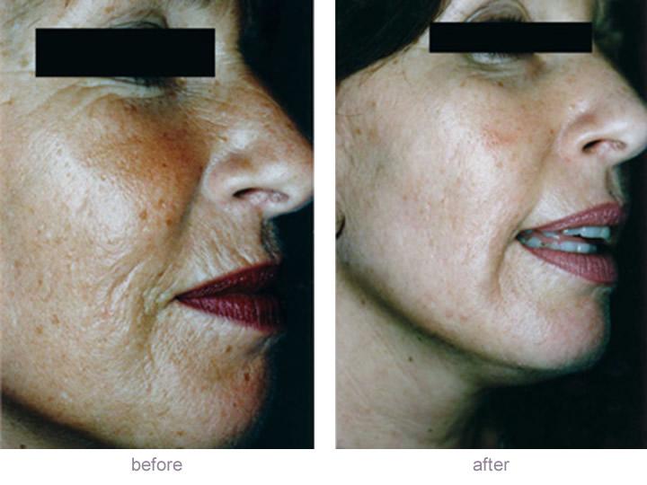 Dermaroller for lines and wrinkles