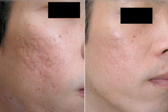 Dermaroller for acne scars